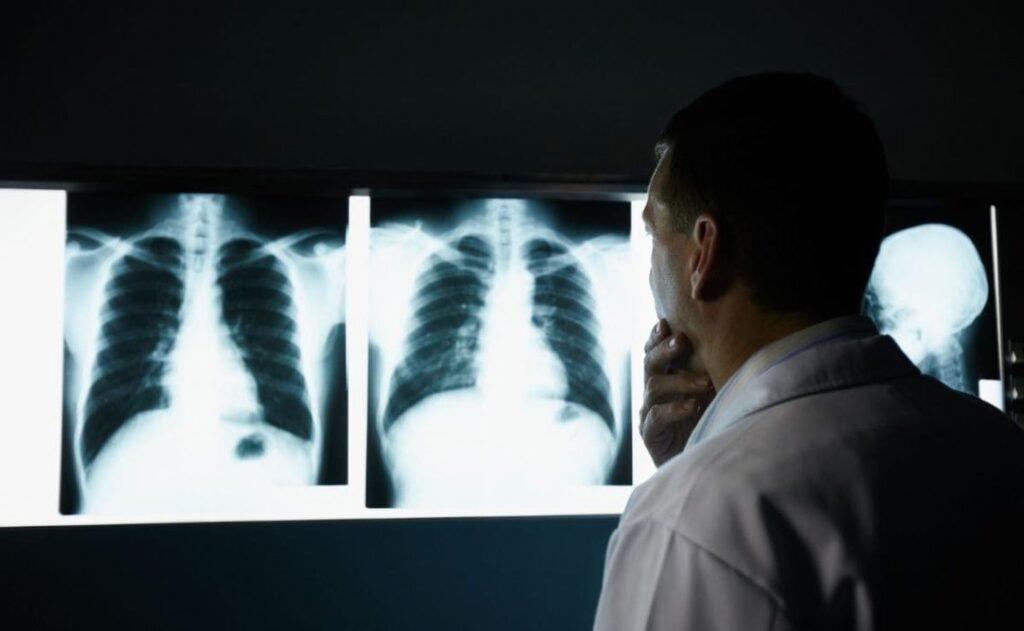 Estados Unidos a la vanguardia de la investigación contra el cáncer de pulmón - agosto 25, 2021 2:20 am - NOTIGUARO - INTERÉS SALUDABLE